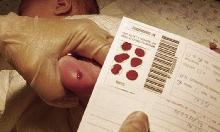 La prueba del talón es capaz de detectar 2.000 enfermedades